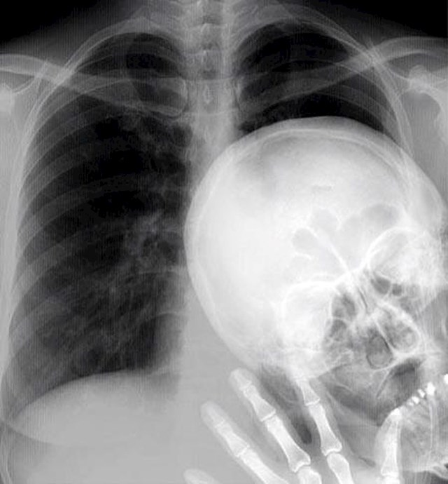 Evo kako izgleda rendgenska fotobomba.
