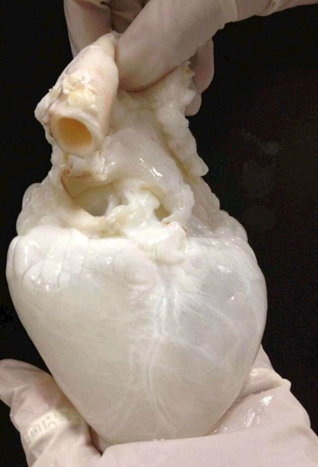 Ovako izgleda ljudsko srce bez kapi krvi.