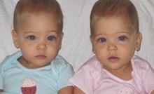Prije 9 godina su rođene kao identične bebe, danas ih nazivaju najljepšim blizankama na svijetu