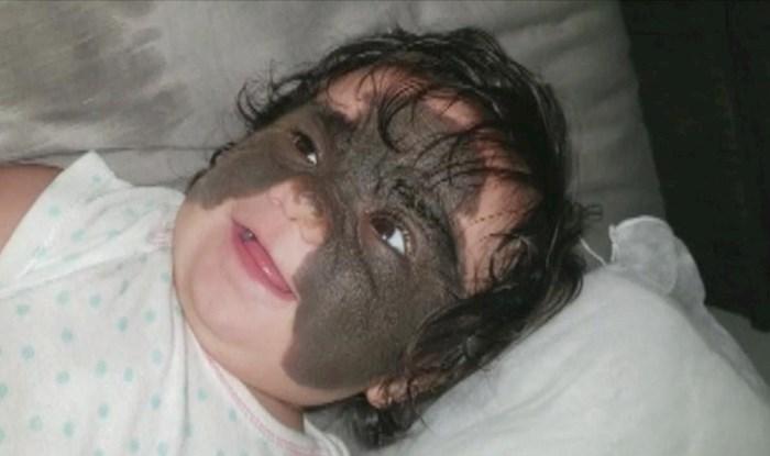 """VIDEO Ova bebica je rođena s """"Batman maskom"""" na licu, njeni roditelji su donijeli važnu odluku"""