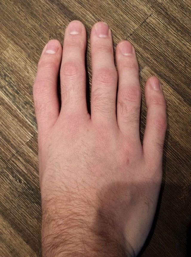 Ovaj čovjek ima malo drugačiji raspored prstiju...