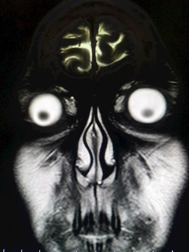 Ok, ovaj put nije riječ o rendgenskoj slici nego magnetskoj rezonanci. Izgleda jezivo.