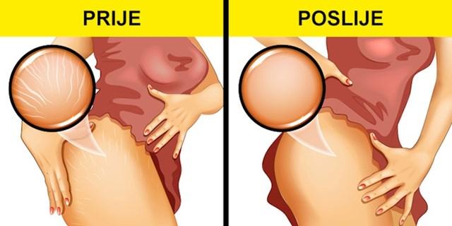 Oporavak od trudnoće i porođaja