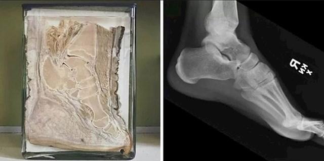 Stopalo slona i ljudsko stopalo