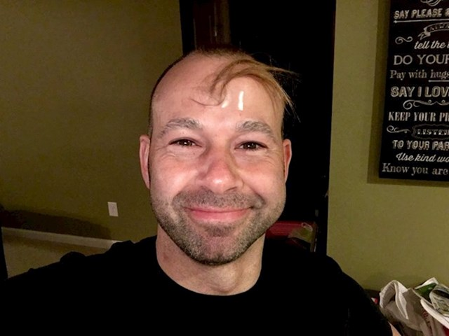 """""""Moja nećakinja je rekla da gubim kosu pa je odrezala malo svoje kose i dala je meni. Nadam se da će selotejp izdržati."""""""
