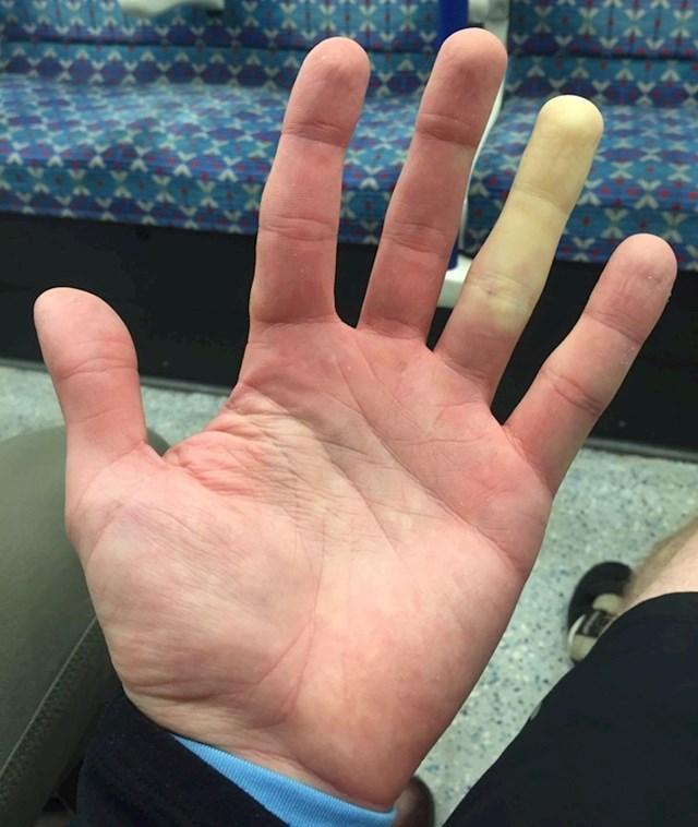 """""""Jedan prst mi pobijeli svaki put kad mi je hladno."""""""