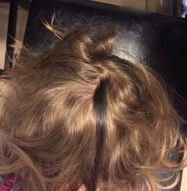 """""""Moja kćerkica ima pramen kose koji je puno tamniji od ostatka."""""""