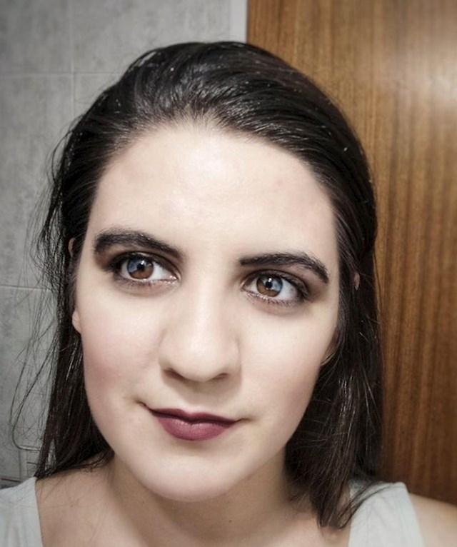 I ovoj ženi su oči pola smeđe, pola plavkasto-sive
