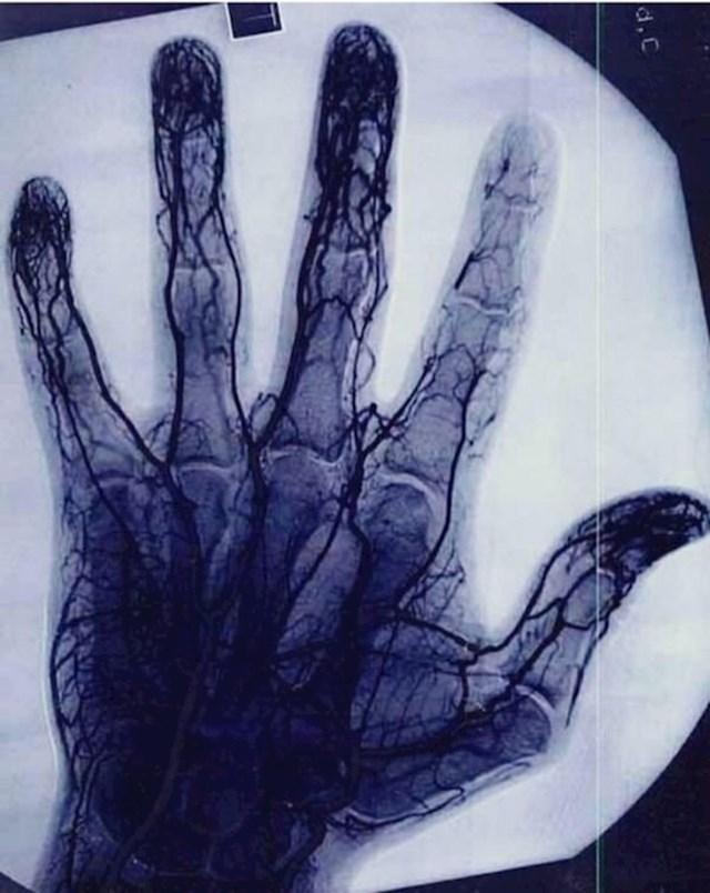 """""""Ovo je slika ruke osobe koja je godinama jako često koristila yo-yo."""""""