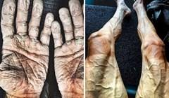 12 fotografija koje prikazuju nevjerojatnu moć ljudskog tijela i snagu volje