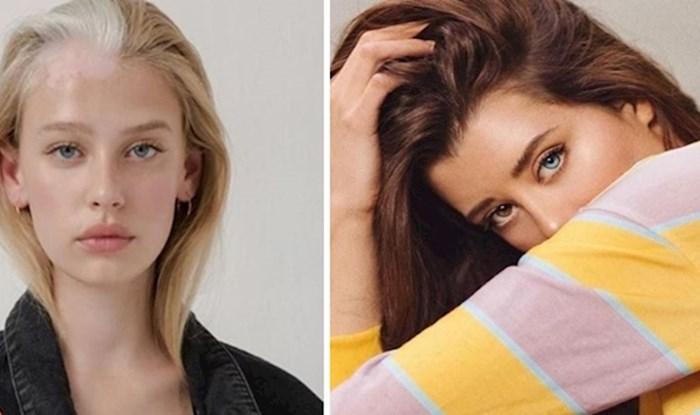 10 modela koje je proslavio njihov jedinstveni izgled