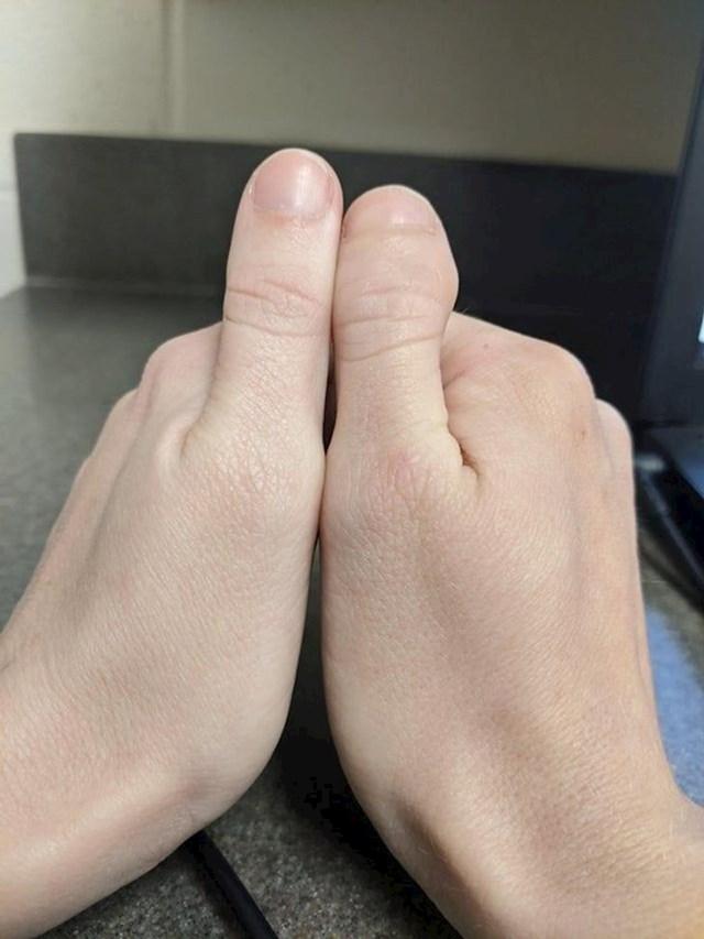 8. Ima dva potpuno različita palca.