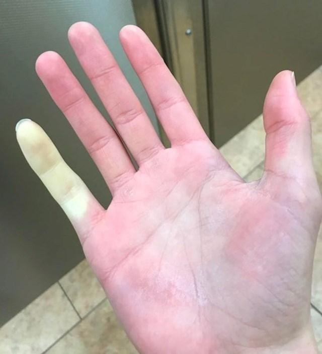 6. Prst koji mu zimi po hladnoći uvijek utrne