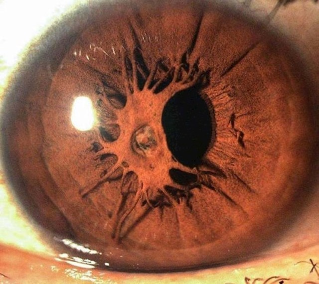 14. Zaista jedinstveno oko.