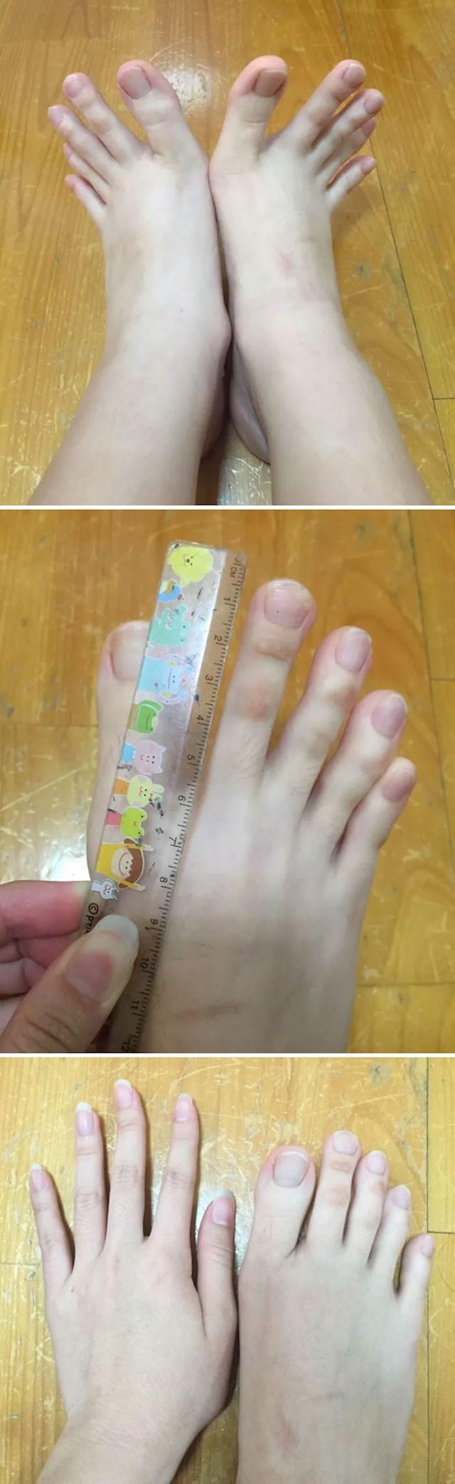 30. Ekstremno dugi nožni prsti.