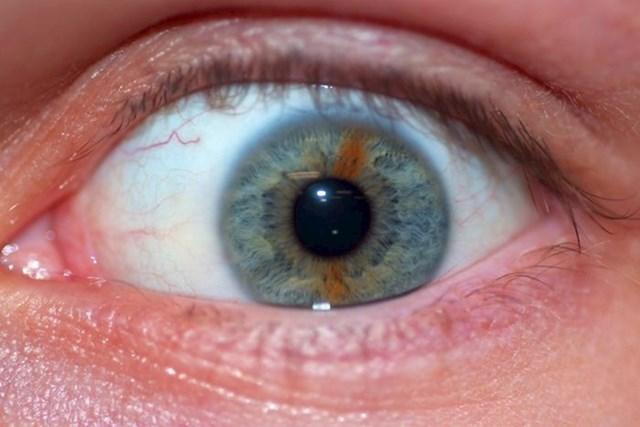 """2. """"Moje oko ima smeđu prugu usred plavo zelene šarenice."""""""