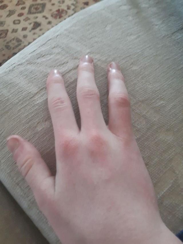 """19. """"Rođena sam s četiri prsta."""""""