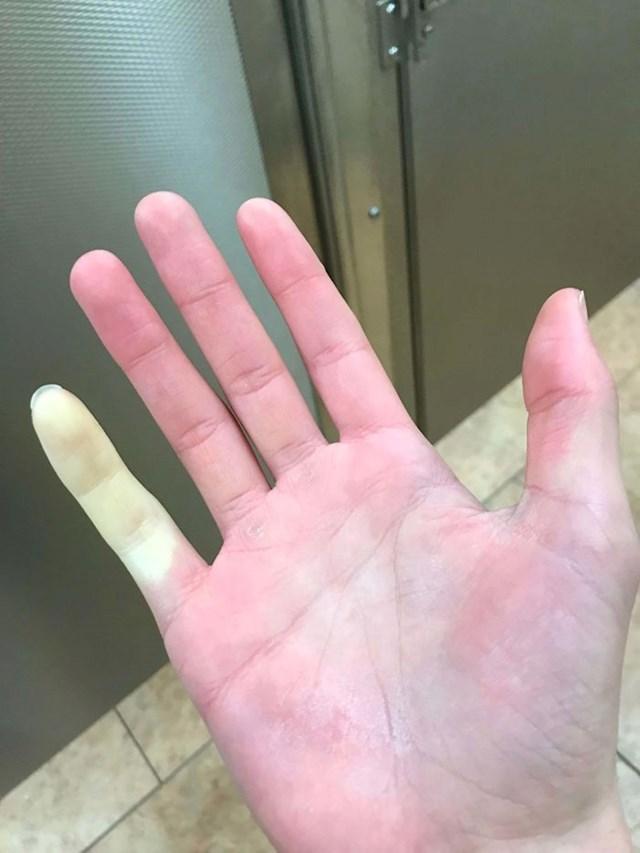 """12. """"Radila sam vani po zimi i samo ovaj mali prst mi je ozebao."""" :)"""