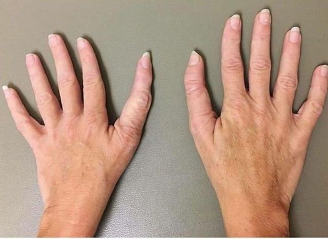 3. Neobični palčevi