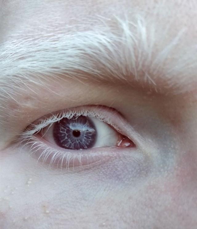 7. Ljepota albino ljudi.