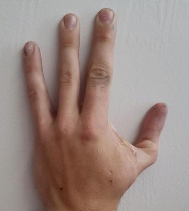 19. Moj muž rođen je bez palca, pa su mu na njegovo mjesto prišili kažiprst