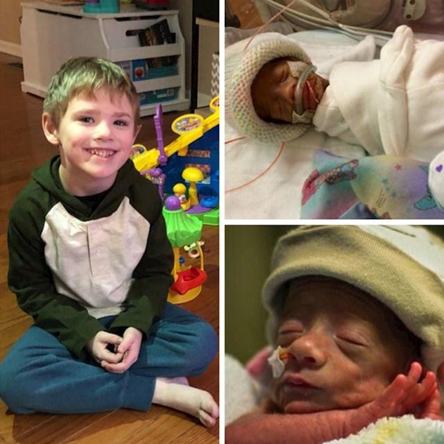 """6. """"Moj je sin započeo svoj život rano, s tek 29 tjedana. Danas mu je 5. rođendan. A rekli su nam da neće preživjeti..."""""""