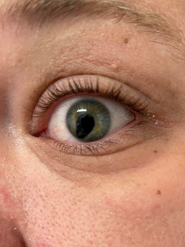"""3. """"Nokat mi je uletio u oko i ovo je rezultat"""""""