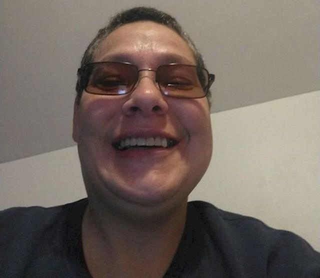 3. Godinama se nisam smijala zbog svojih ružnih zubi. Nakopon sam ih popravila i sad uživam u svakom osmjehu.