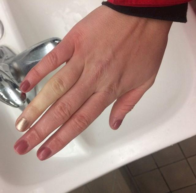 """8. """"Kao dijete slomila sam prst. Danas on jedini ne reagira na hladnoću!"""""""