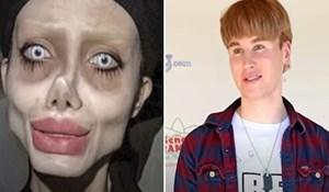 """VIDEO Ljudi koji su """"malo"""" pretjerali s operacijama da nalikuju na poznate face"""