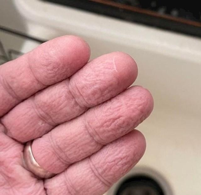 12. Dio prsta koji sam ozlijedio i koji su mi ponovno prišili nikad se ne smežura pod vodom