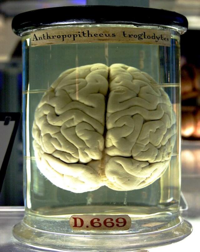 Da dotaknete mozak u njegovom prirodnom stanju - raspao bi se! Znanstvenici koriste razne kemikalije kako bi ga očvrsnuli.