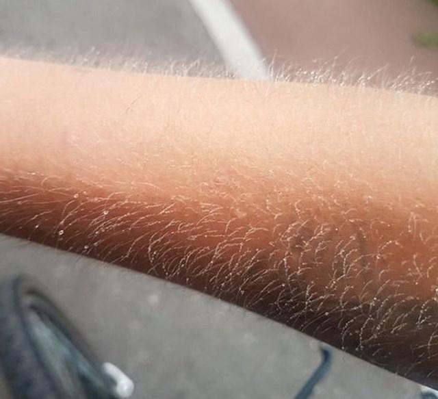 Dlake na ruci nakon bicikliranja na -5
