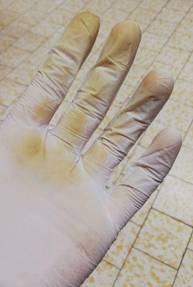 """23. """"Radim kao blagajnica. Ovo su moje ruke nakon smjene od 5 sati. Perite ruke!"""""""