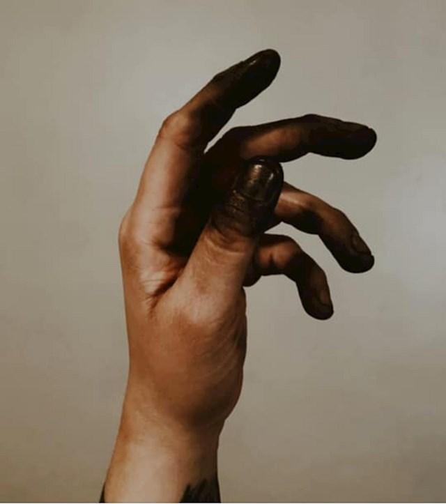5. Zlatarove ruke nakon nekoliko sati rada.