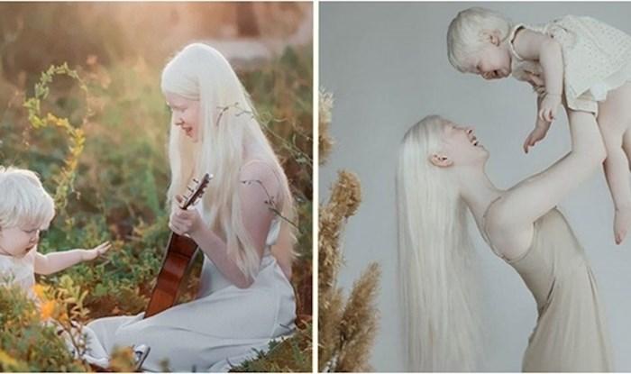 Jedinstvene albino sestre iz Kazahstana zadivile svijet svojom ljepotom