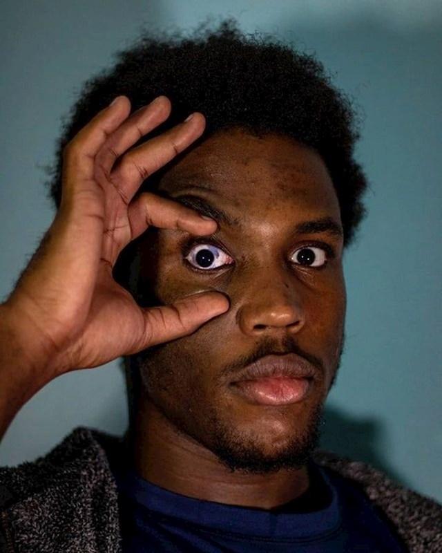12. Ima madež u oku.
