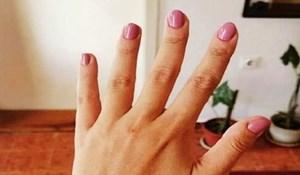 Podijelila je fotku svoje ruke i skupila tisuće lajkova zbog onoga što je napisala u opisu