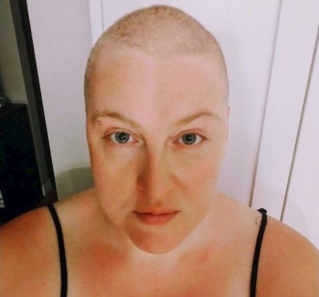 8. Počela sam gubiti kosu zbog anksioznosti. Napokon sam odlučila obrijati glavu i prihvatiti i zavoljeti novu verziju sebe.