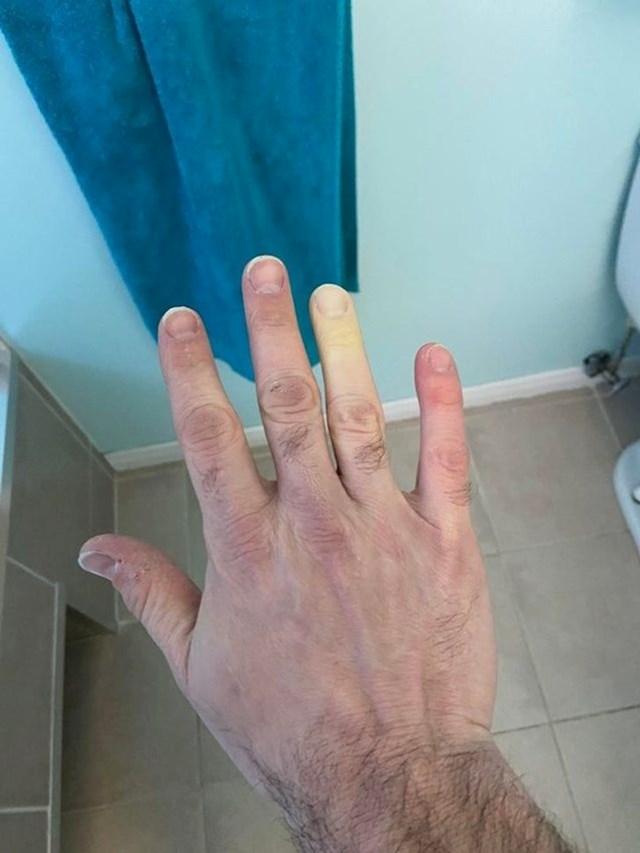 11. Njegov prst promijeni boju kad je vani hladno. A živi u Kanadi.