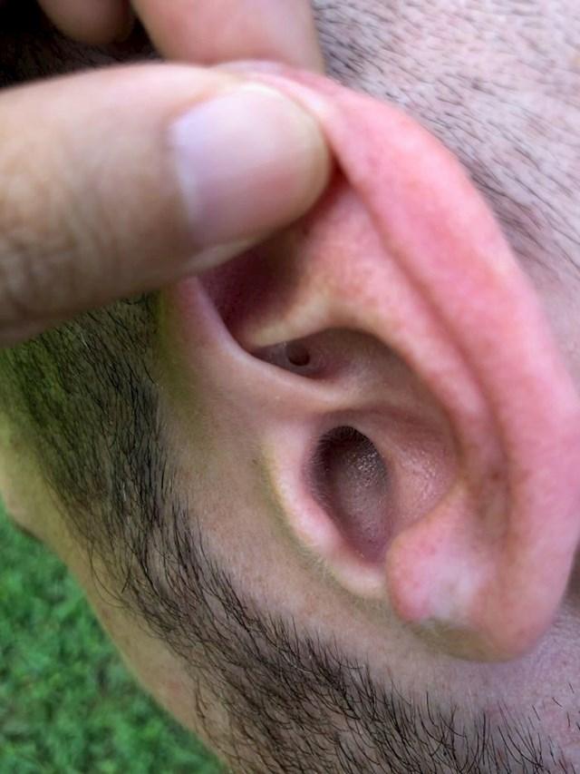 9. Dvije rupice u uhu.