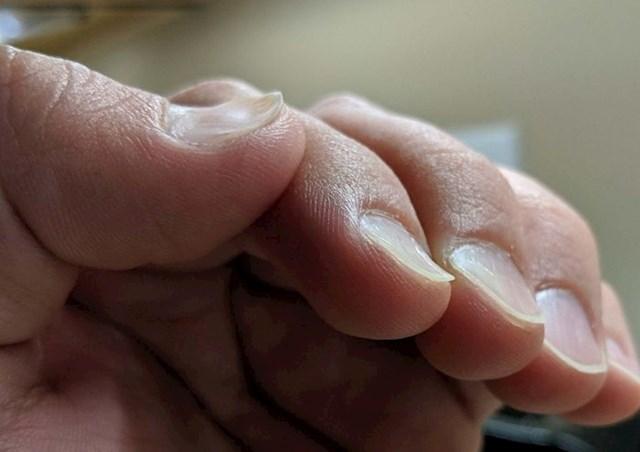 """4. """"Moj muž ima uvijene nokte."""""""