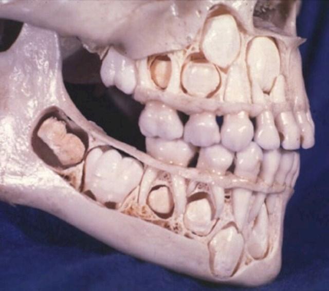 Mala djeca imaju prave zube - nalaze se točno ispod njihovih očiju.