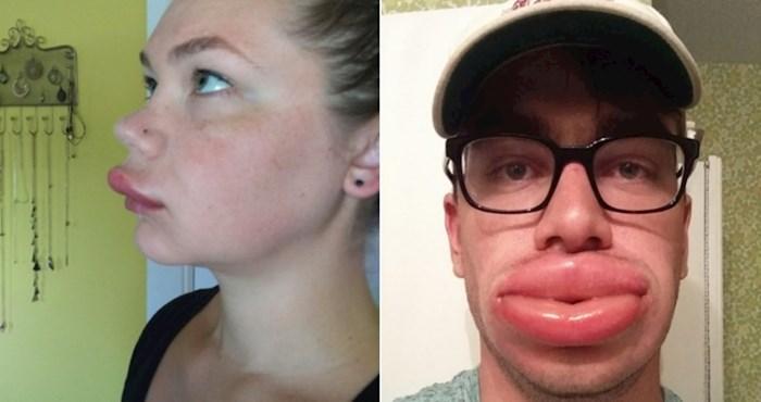 20+ fotki ljudi koji su zahvaljujući ubodima pčela dobili besplatno povećanje usana