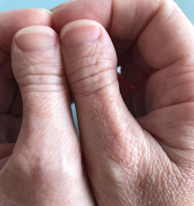"""4. """"Nikad nisam upoznao nekoga tko ima slične prste kao ja..."""""""