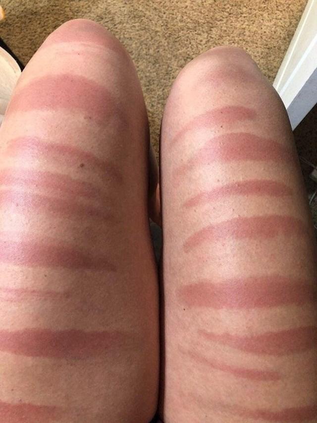 Pouka za sve djevojke koje vole poderane traperice - izbjegavajte jako sunce.