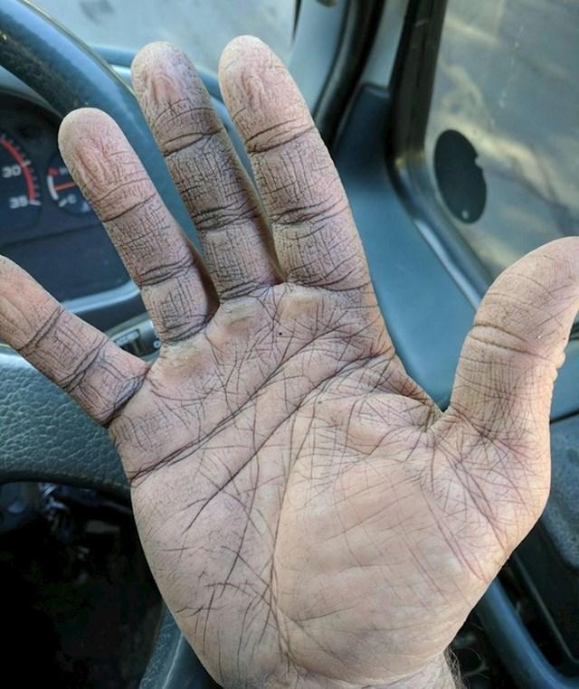 """19. """"Moje ruke nakon napornog dana posla."""""""