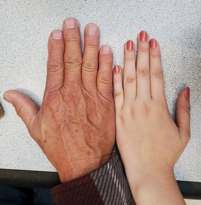 Nasljedila je od tate ovaj razmak između malog prsta i prstenjaka.😄