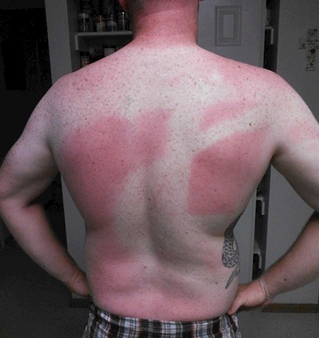 7. Rekla mu je da ga je namazala kremom za sunčanje. Čini se da se nije baš potrudila.