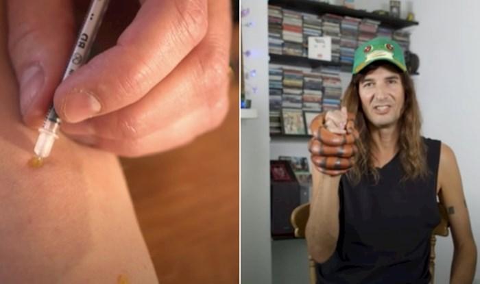 VIDEO Tip već 30 godina dobrovoljno ubrizgava zmijski otrov, objasnio je zašto